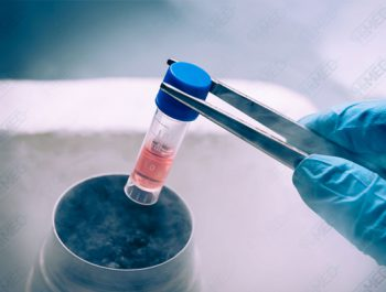 What is sperm cryopreservation and who is it for?